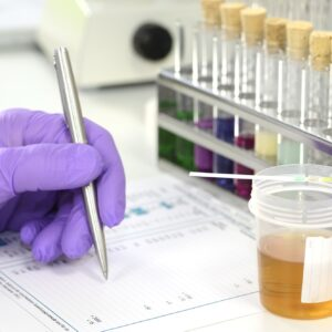 Passing the Urine Test: 5 Tips and Tricks to Land the Job